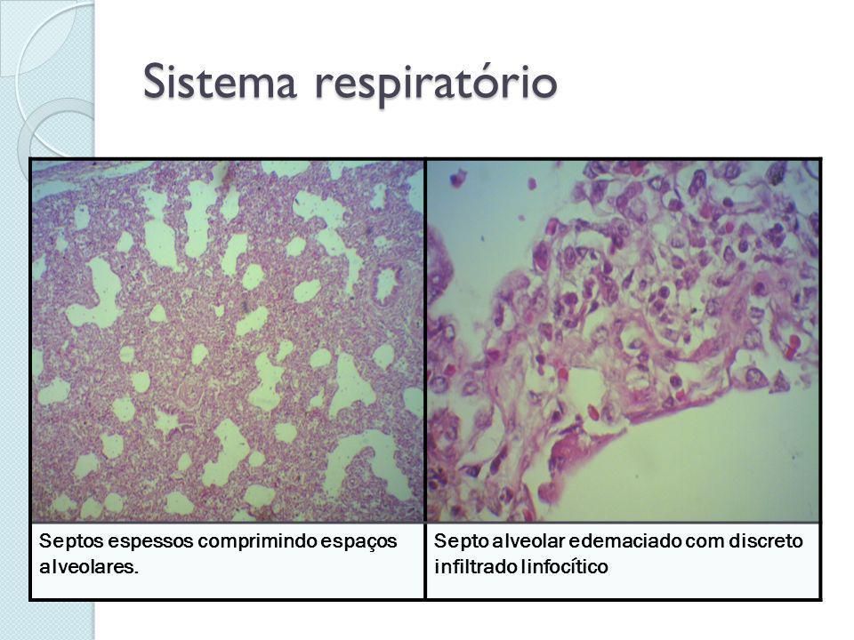 Sistema respiratório Septos espessos comprimindo espaços alveolares.