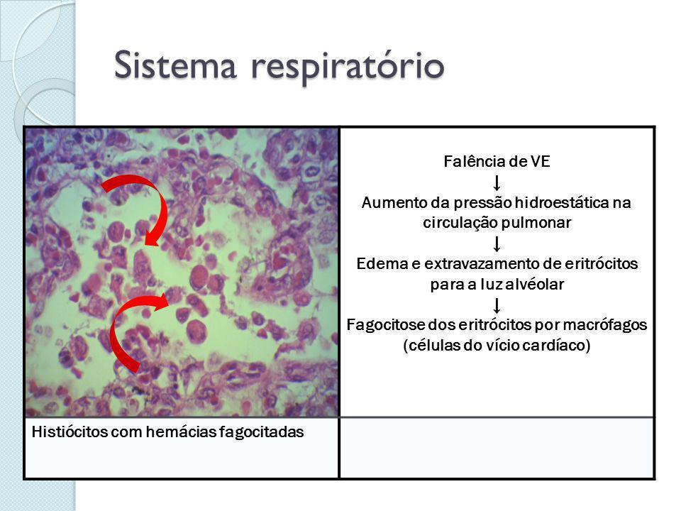 Sistema respiratório Falência de VE ↓