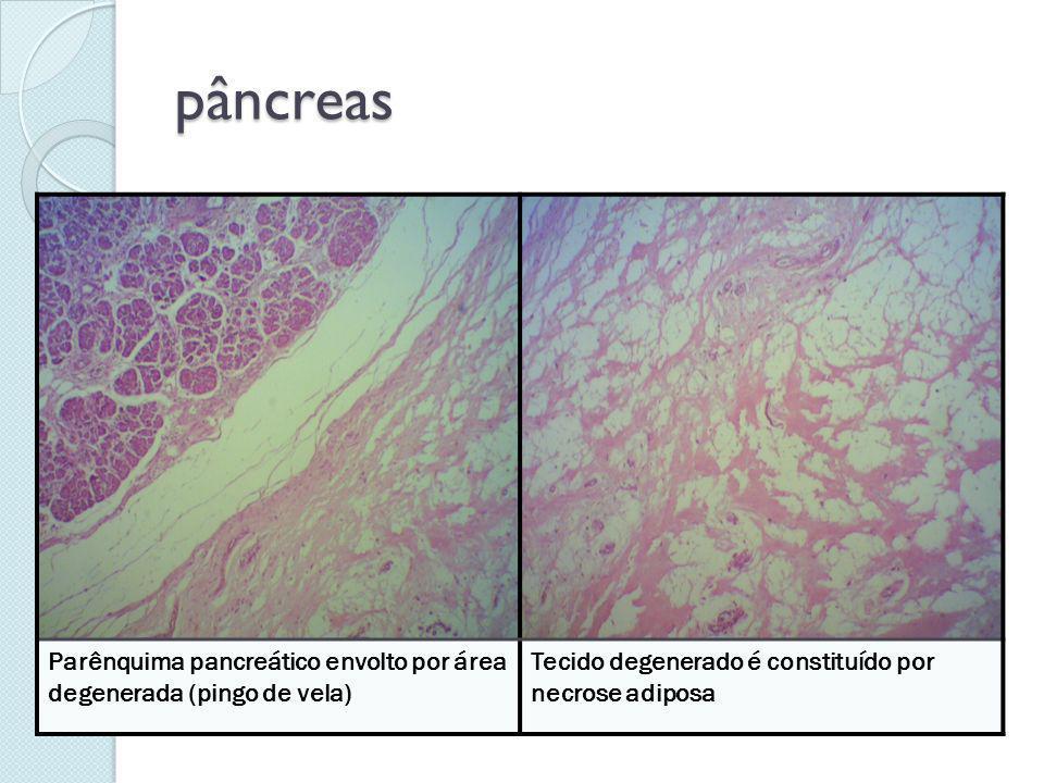 pâncreas Parênquima pancreático envolto por área degenerada (pingo de vela) Tecido degenerado é constituído por necrose adiposa.