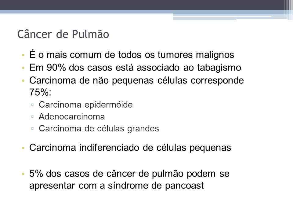 Câncer de Pulmão É o mais comum de todos os tumores malignos