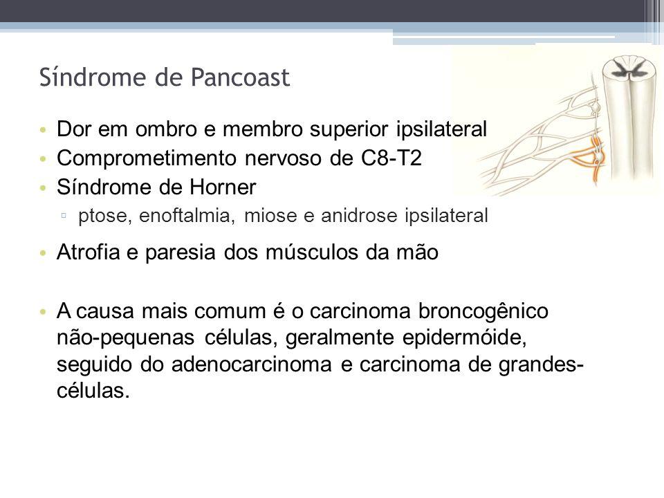 Síndrome de Pancoast Dor em ombro e membro superior ipsilateral