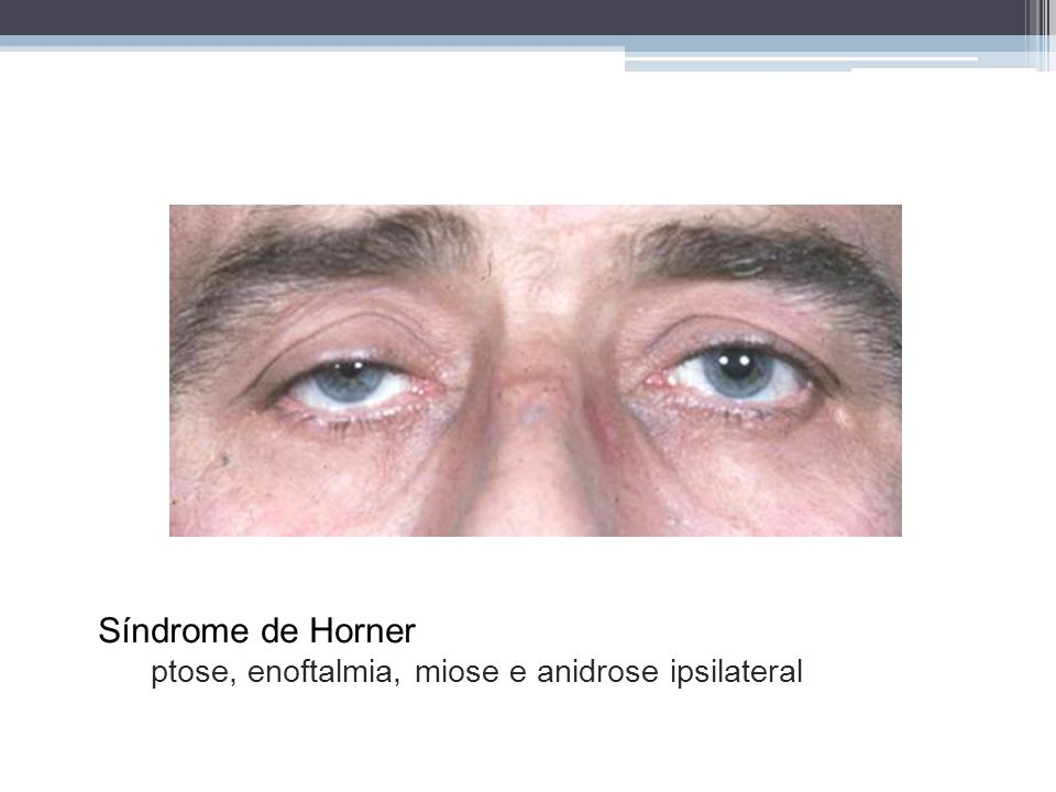 Síndrome de Horner ptose, enoftalmia, miose e anidrose ipsilateral