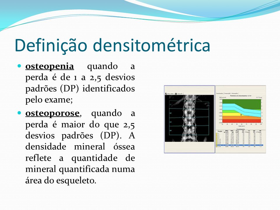 Definição densitométrica