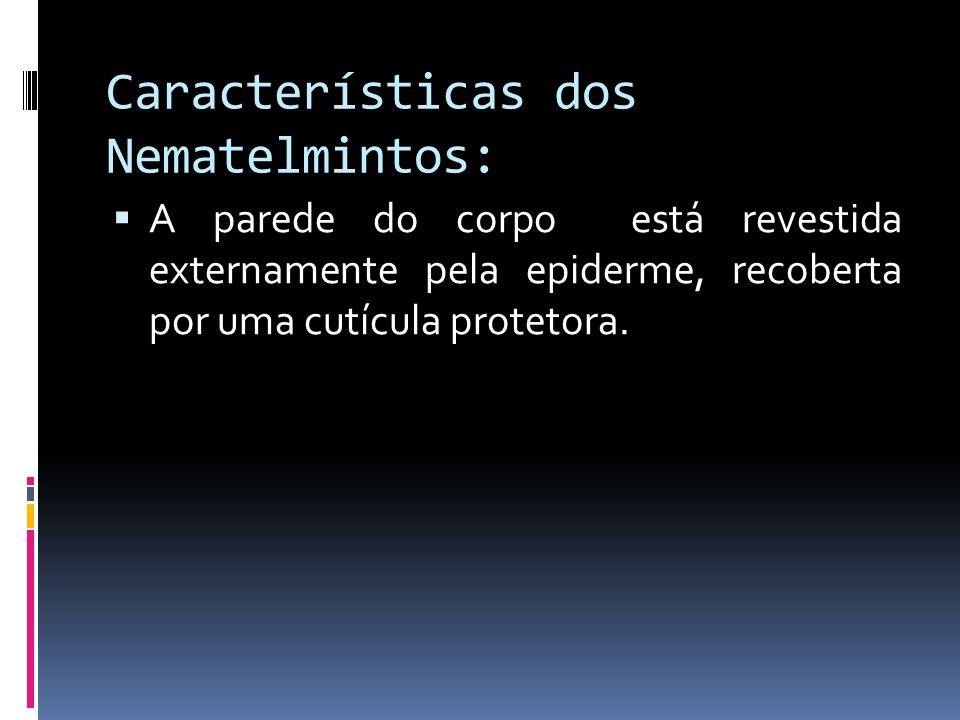 Características dos Nematelmintos: