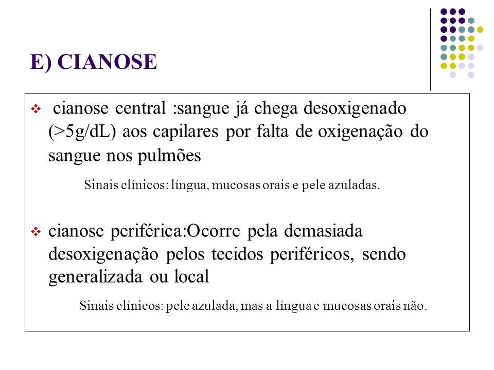 E) CIANOSE cianose central :sangue já chega desoxigenado (>5g/dL) aos capilares por falta de oxigenação do sangue nos pulmões.