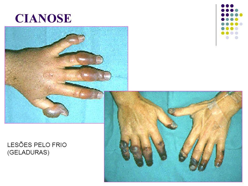 CIANOSE LESÕES PELO FRIO (GELADURAS)