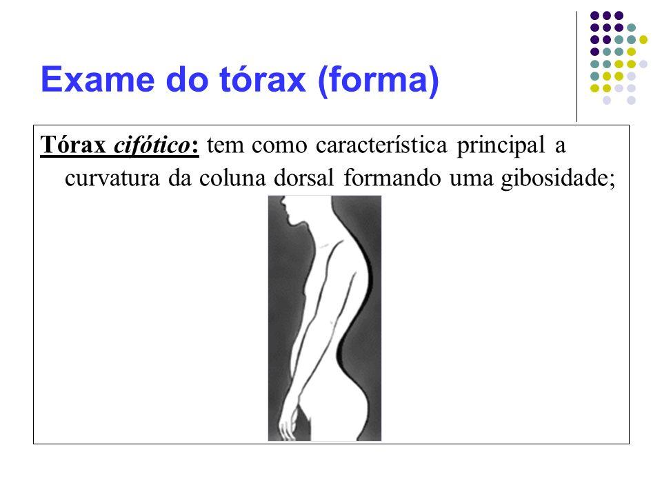 Exame do tórax (forma) Tórax cifótico: tem como característica principal a curvatura da coluna dorsal formando uma gibosidade;