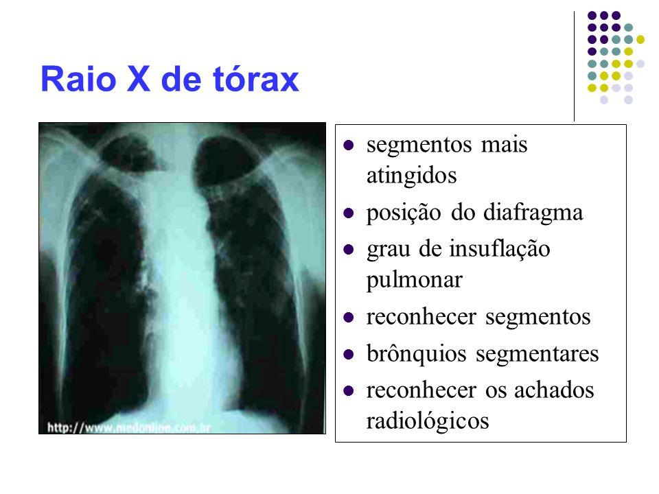Raio X de tórax segmentos mais atingidos posição do diafragma