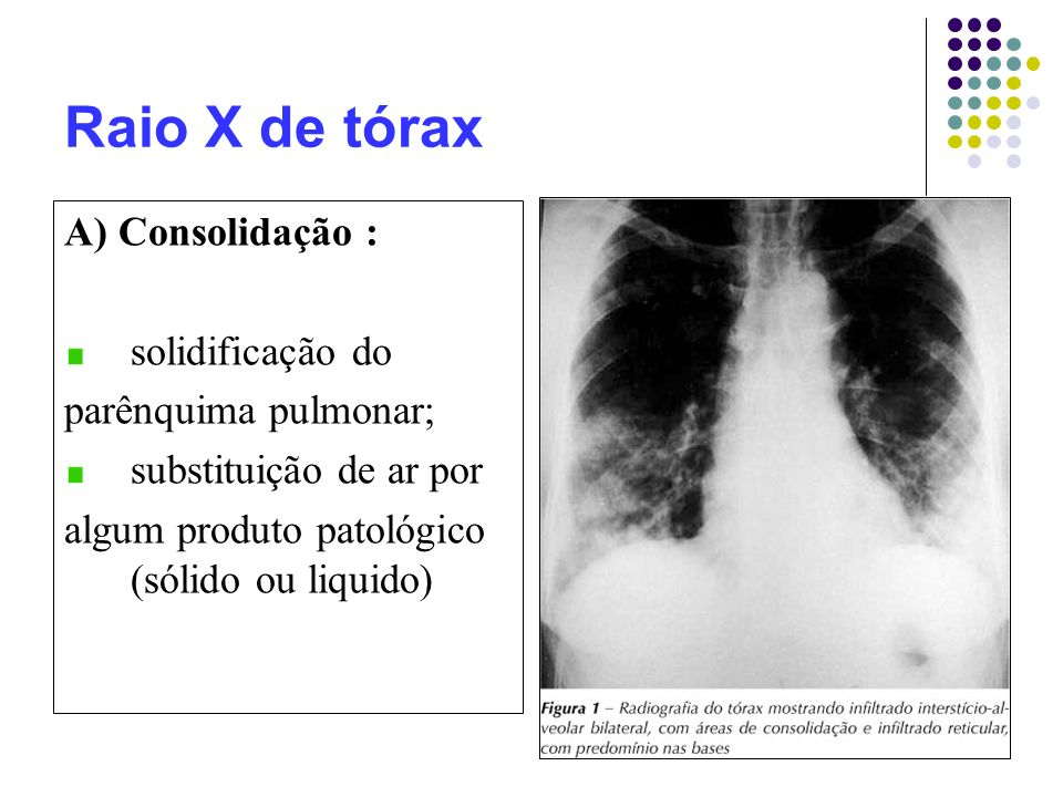 Raio X de tórax A) Consolidação : solidificação do