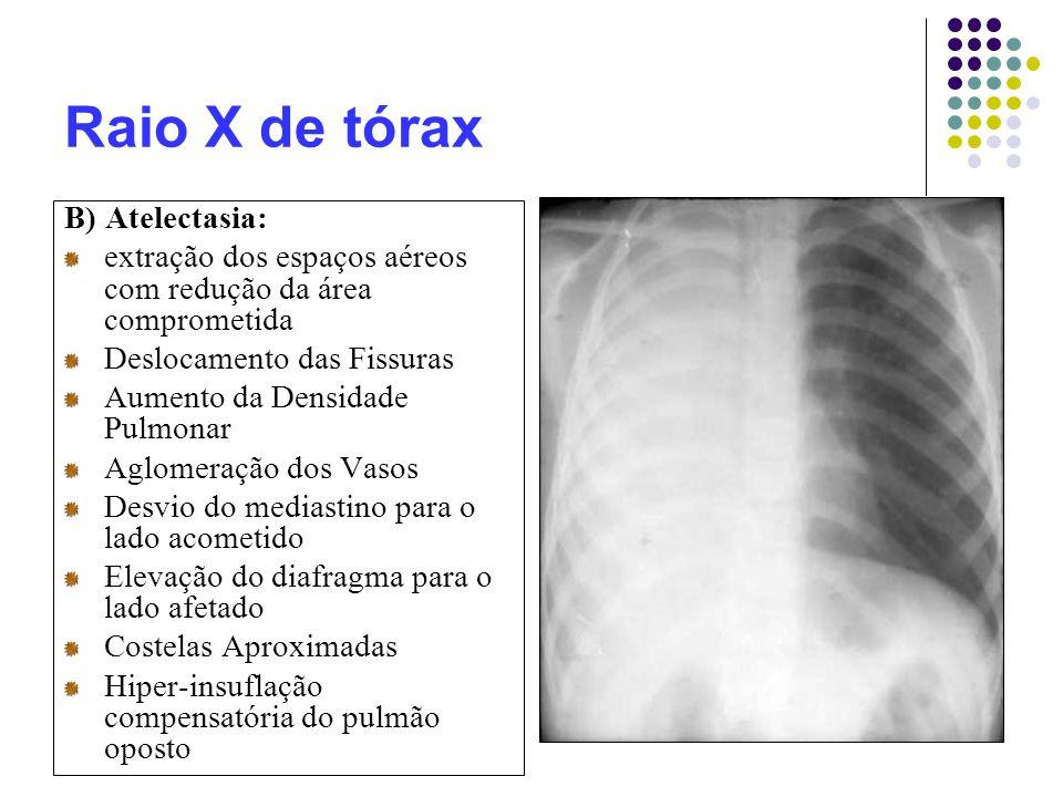 Raio X de tórax B) Atelectasia: