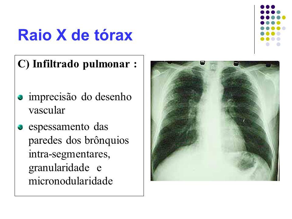 Raio X de tórax C) Infiltrado pulmonar :