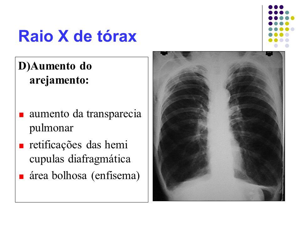 Raio X de tórax D)Aumento do arejamento: