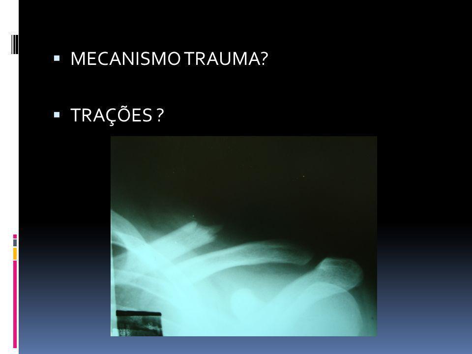 MECANISMO TRAUMA TRAÇÕES