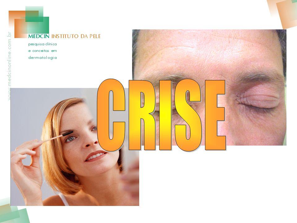 CRISE
