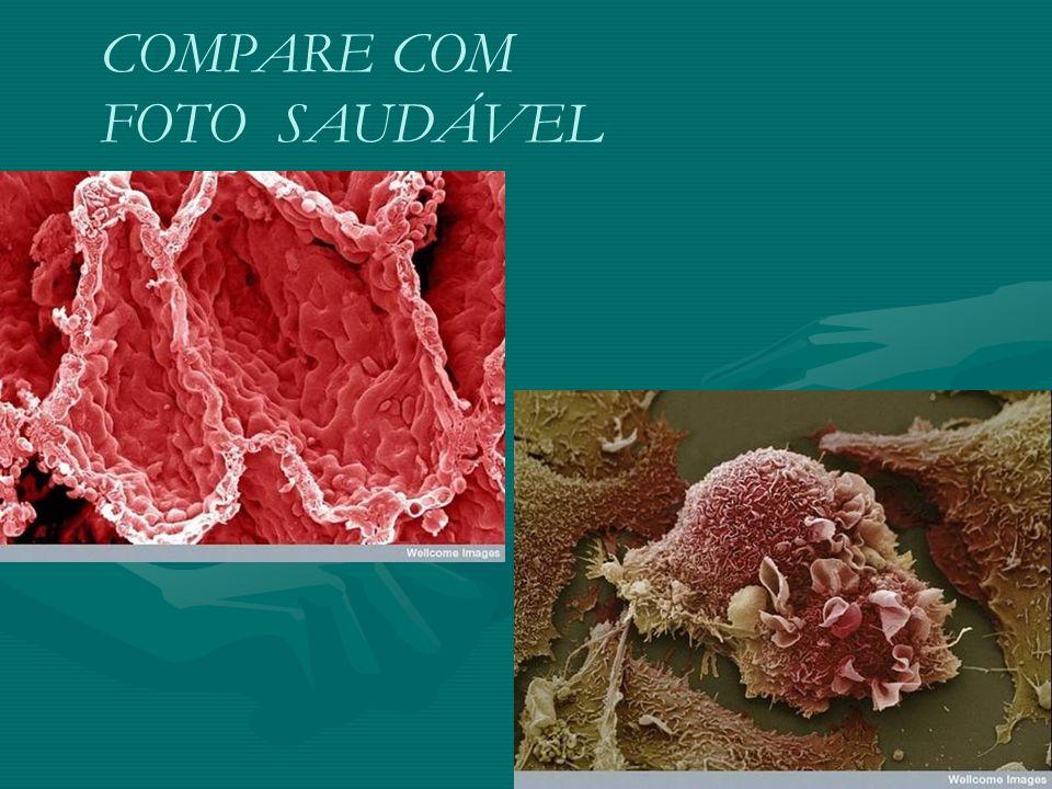 COMPARE COM FOTO SAUDÁVEL