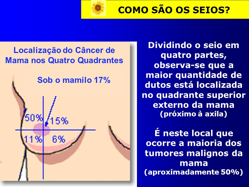 Localização do Câncer de Mama nos Quatro Quadrantes
