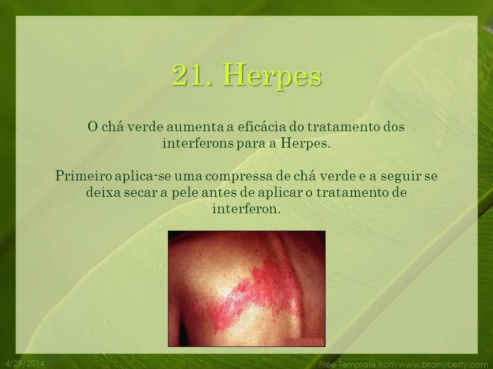 21. Herpes O chá verde aumenta a eficácia do tratamento dos interferons para a Herpes.