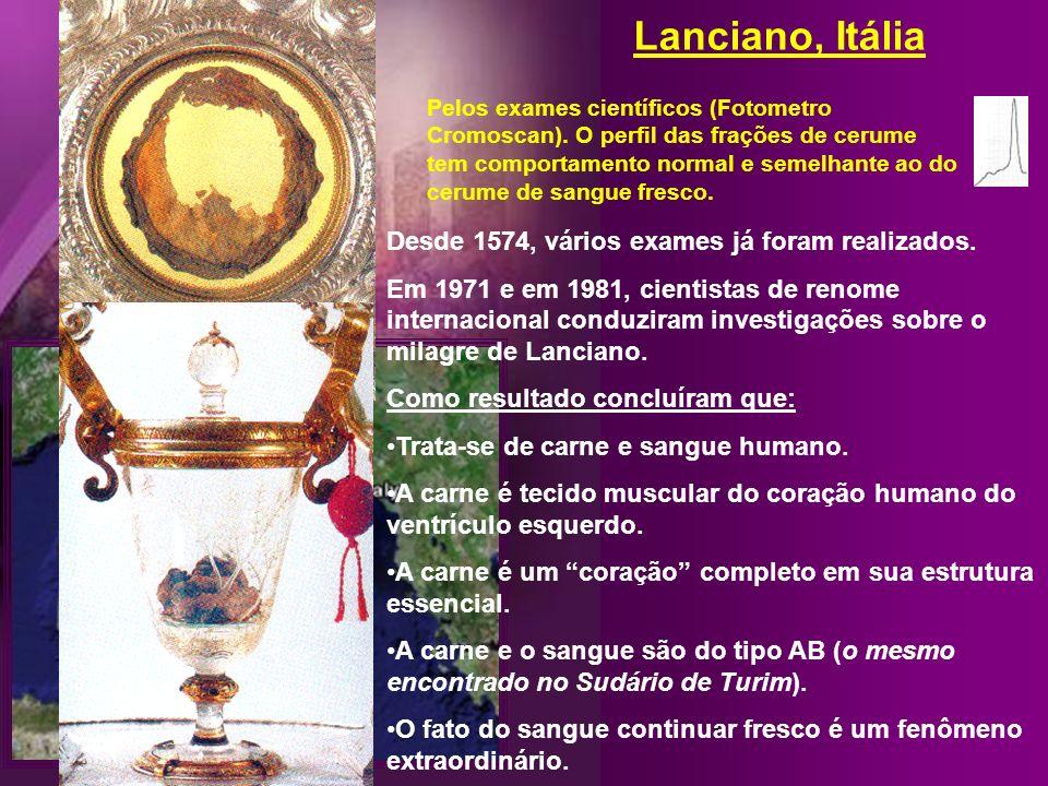 Lanciano, Itália Desde 1574, vários exames já foram realizados.