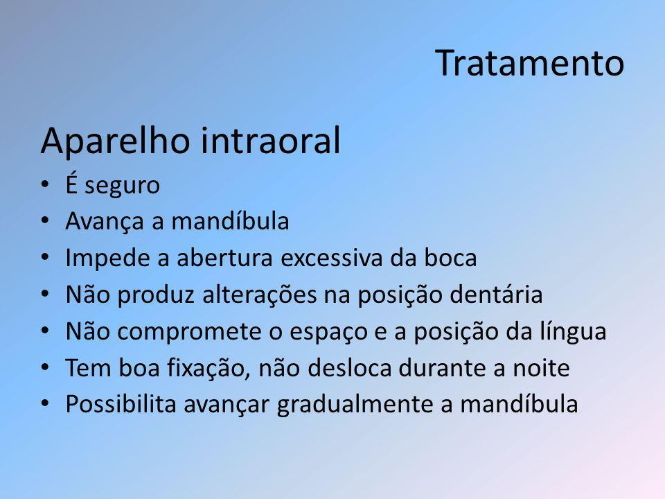 Tratamento Aparelho intraoral É seguro Avança a mandíbula