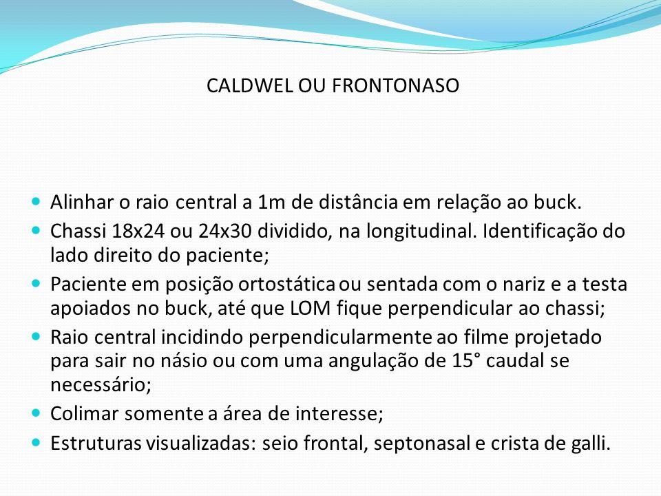 CALDWEL OU FRONTONASO Alinhar o raio central a 1m de distância em relação ao buck.