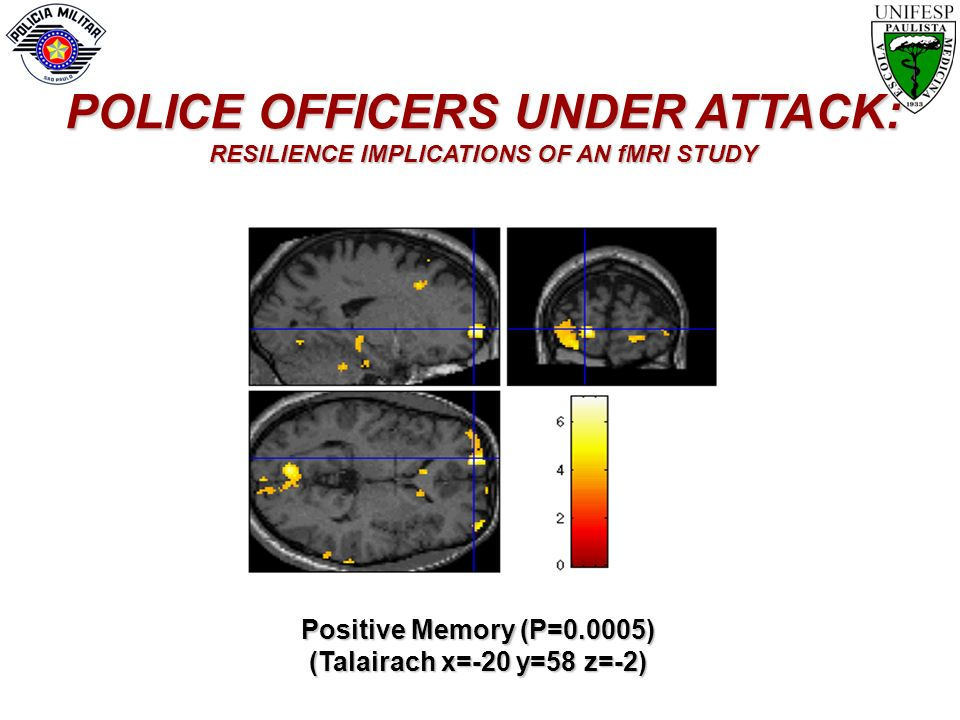 POLICE OFFICERS UNDER ATTACK: RESILIENCE IMPLICATIONS OF AN fMRI STUDY
