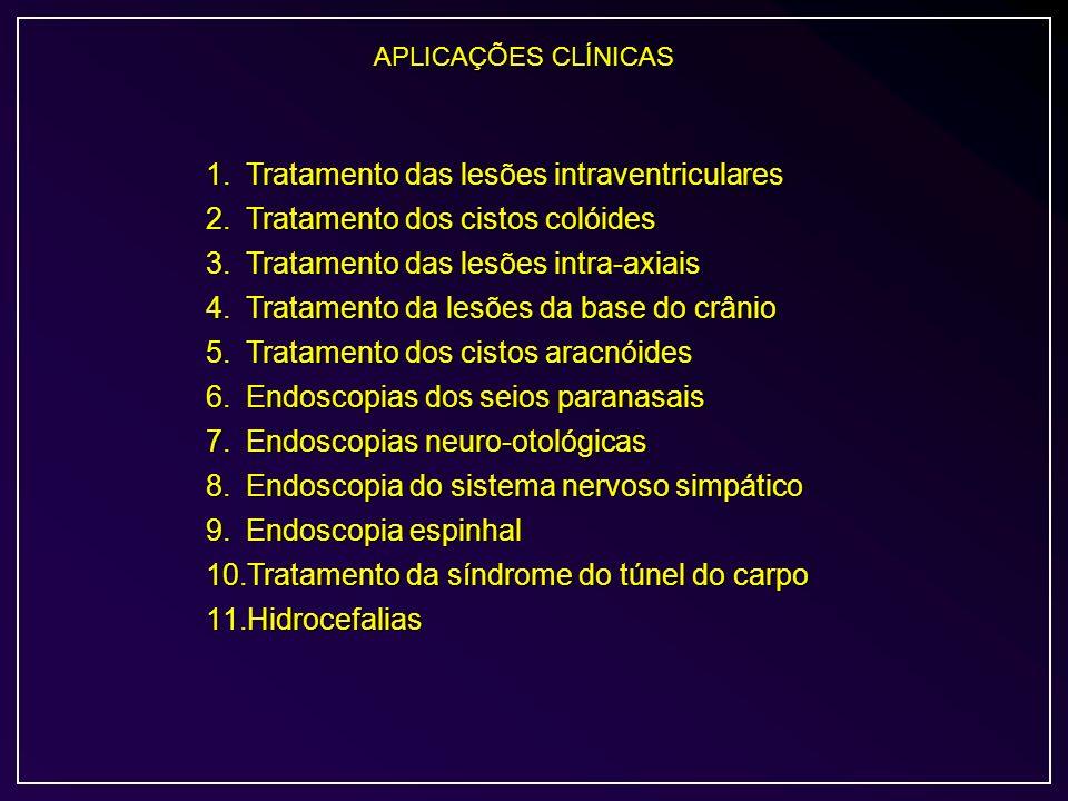 Tratamento das lesões intraventriculares