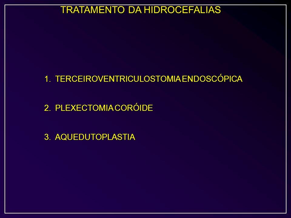 TRATAMENTO DA HIDROCEFALIAS