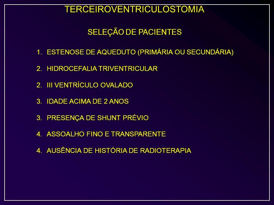 TERCEIROVENTRICULOSTOMIA