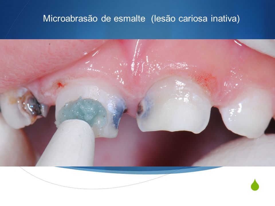 Microabrasão de esmalte (lesão cariosa inativa)