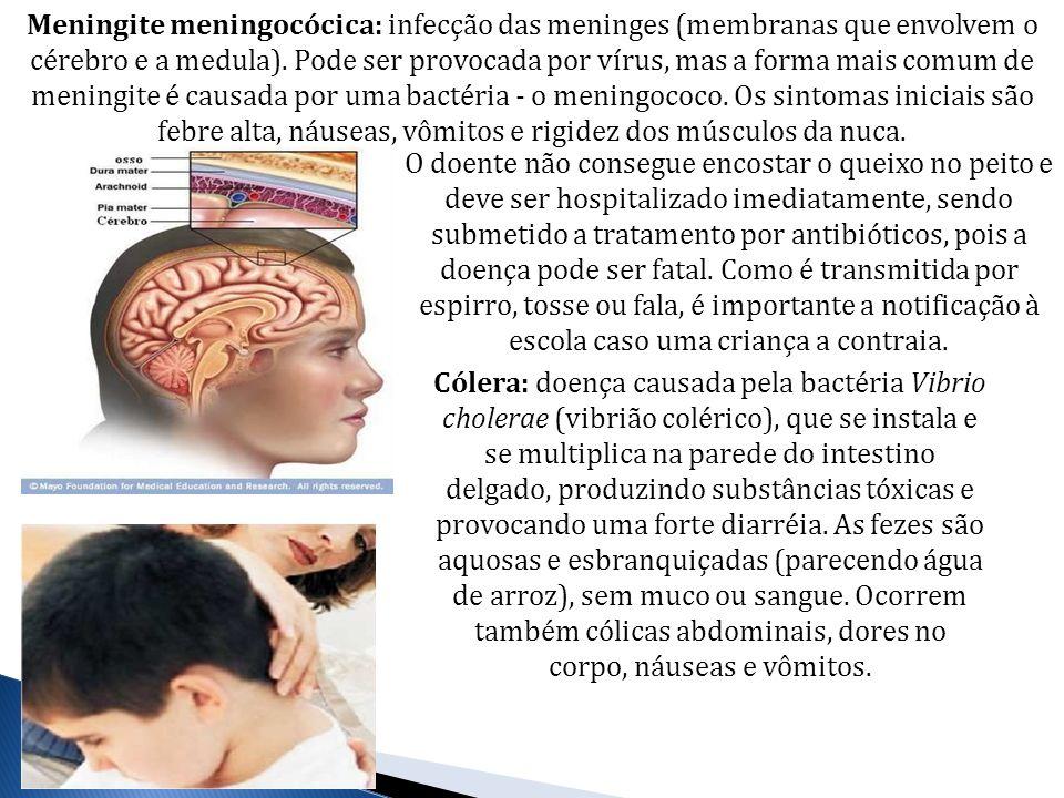 Meningite meningocócica: infecção das meninges (membranas que envolvem o cérebro e a medula). Pode ser provocada por vírus, mas a forma mais comum de meningite é causada por uma bactéria - o meningococo. Os sintomas iniciais são febre alta, náuseas, vômitos e rigidez dos músculos da nuca.