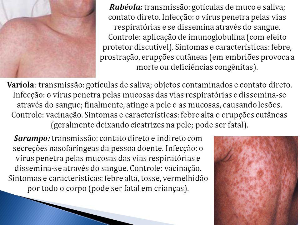 Rubéola: transmissão: gotículas de muco e saliva; contato direto