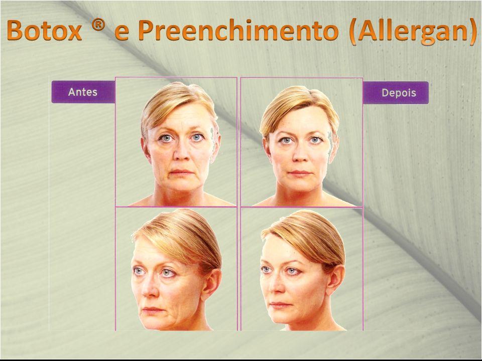 Botox ® e Preenchimento (Allergan)