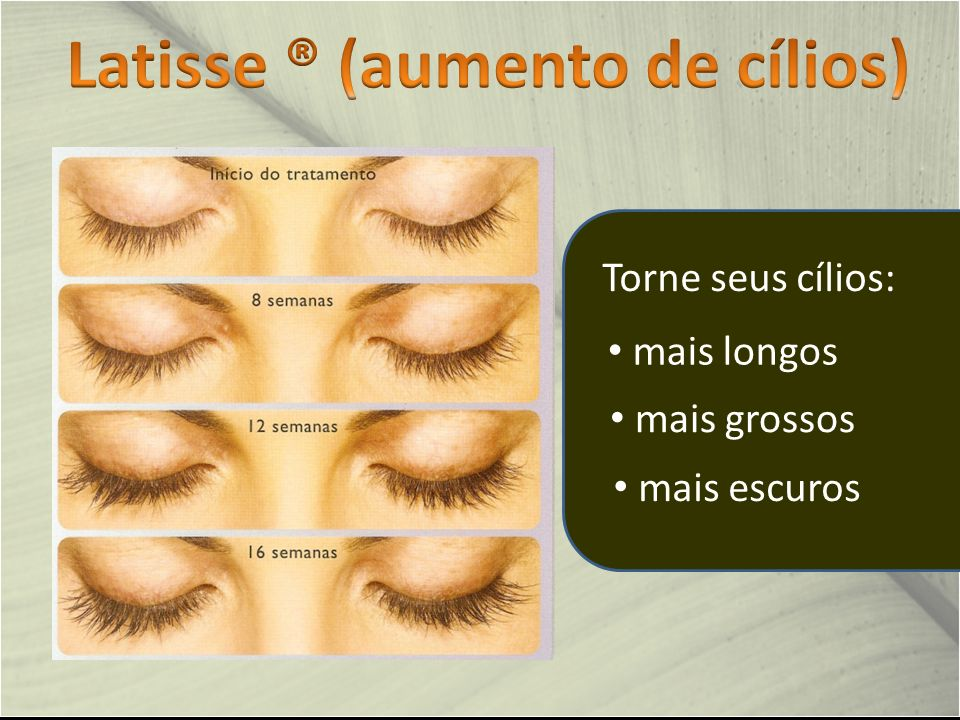 Latisse ® (aumento de cílios)