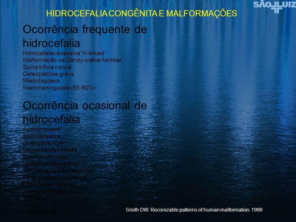 Ocorrência frequente de hidrocefalia
