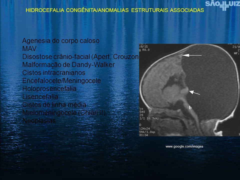 Agenesia do corpo caloso MAV Disostose crânio-facial (Apert, Crouzon)