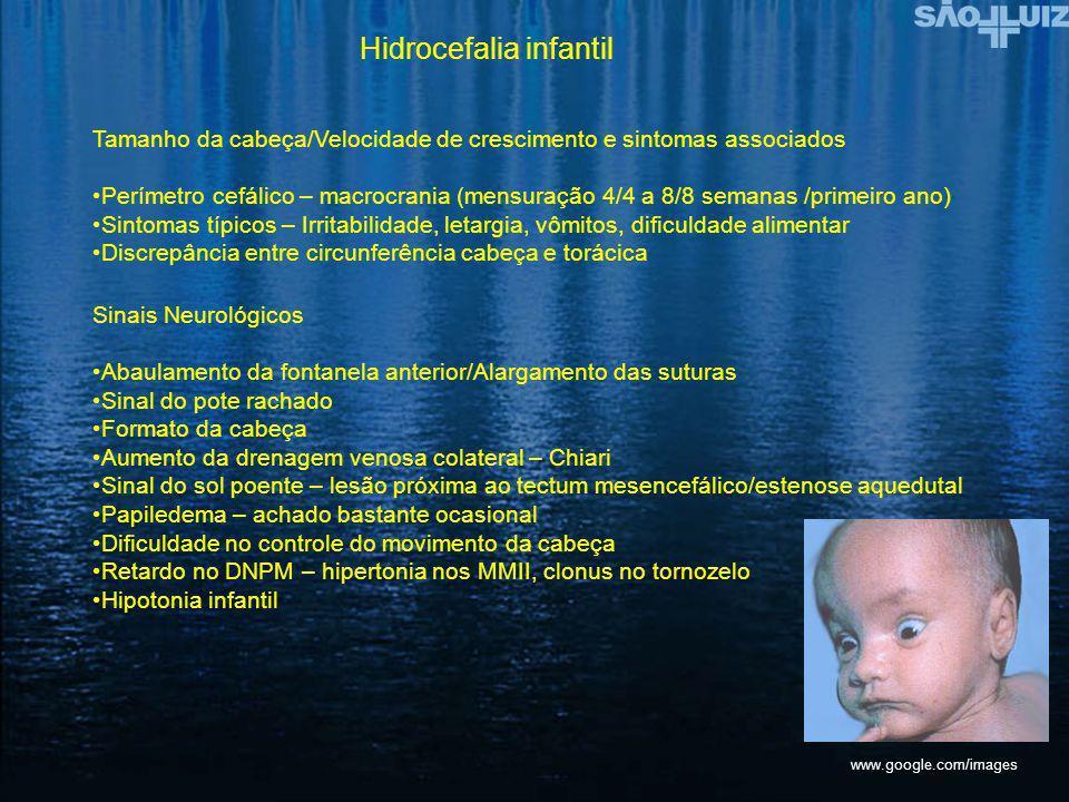 Hidrocefalia infantil