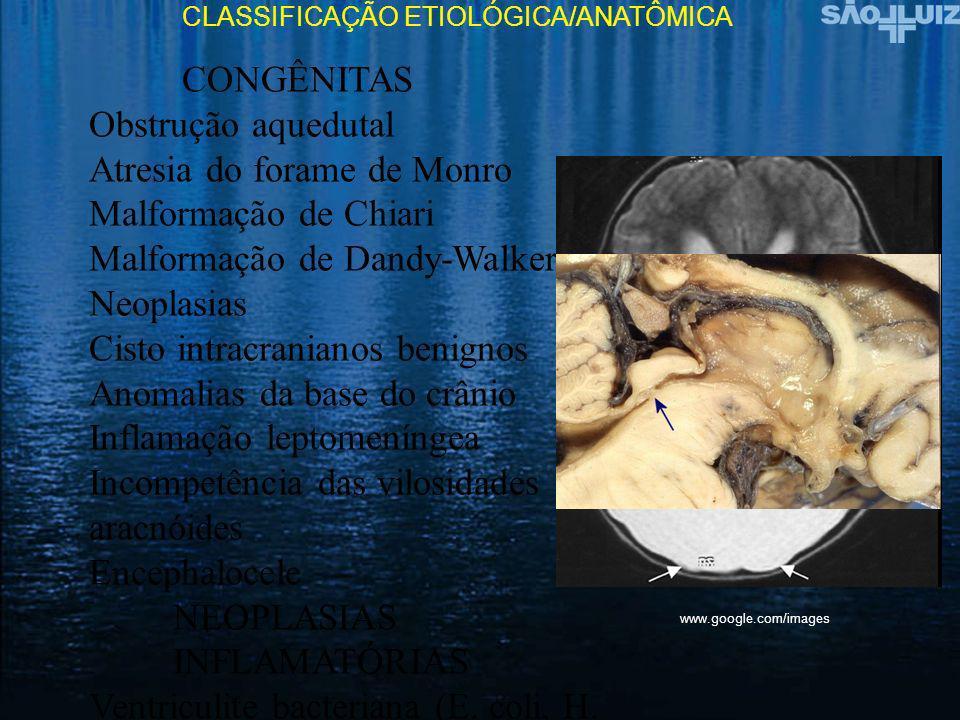 Atresia do forame de Monro Malformação de Chiari