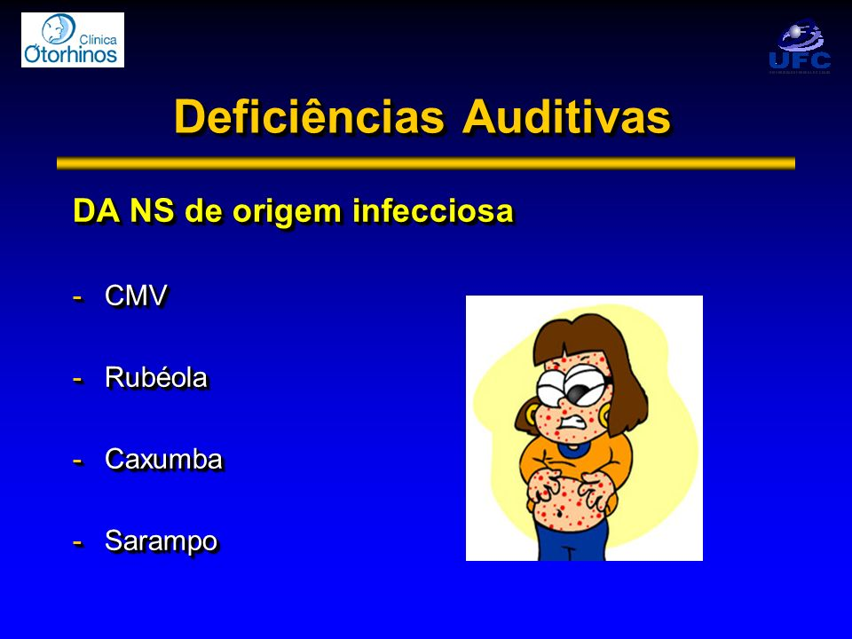 Deficiências Auditivas