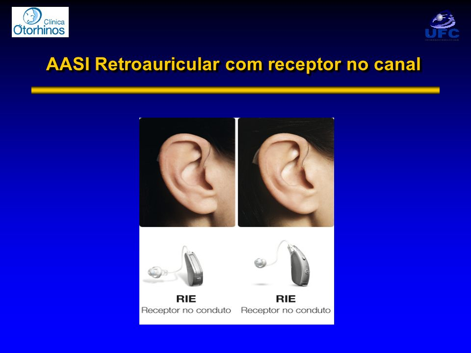 AASI Retroauricular com receptor no canal