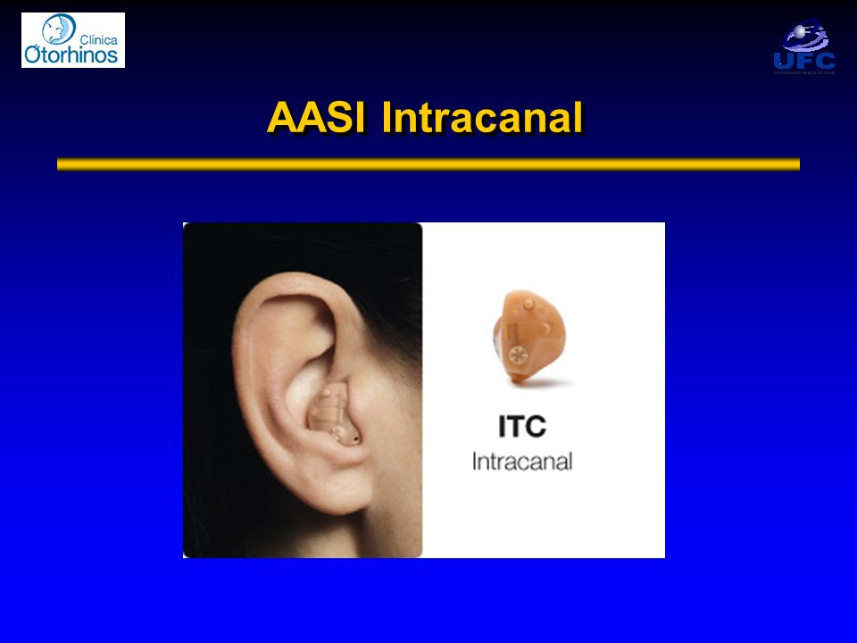 AASI Intracanal