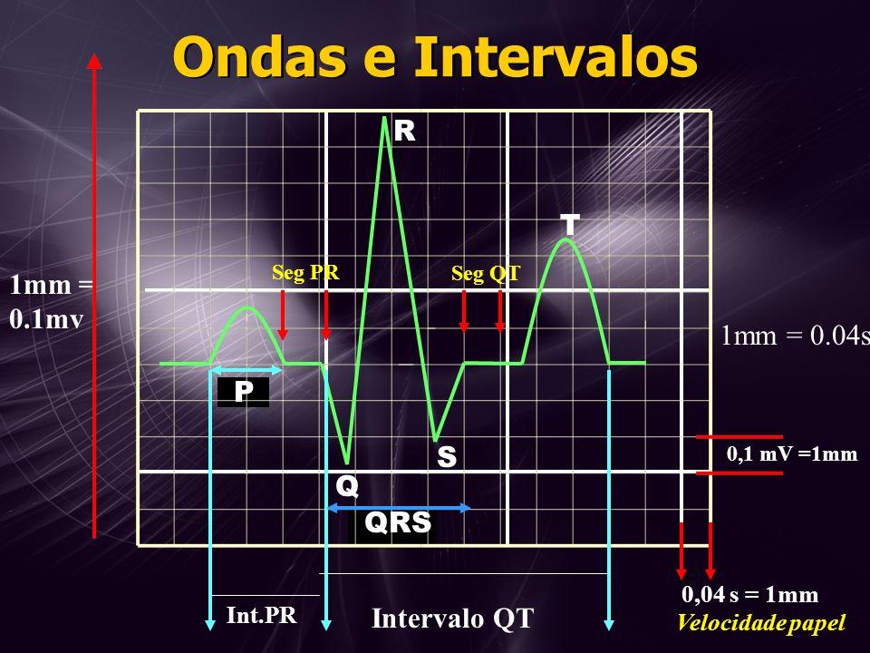 Ondas e Intervalos R T 1mm = 0.1mv 1mm = 0.04s P S Q QRS Intervalo QT