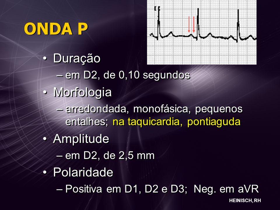 ONDA P Duração Morfologia Amplitude Polaridade em D2, de 0,10 segundos