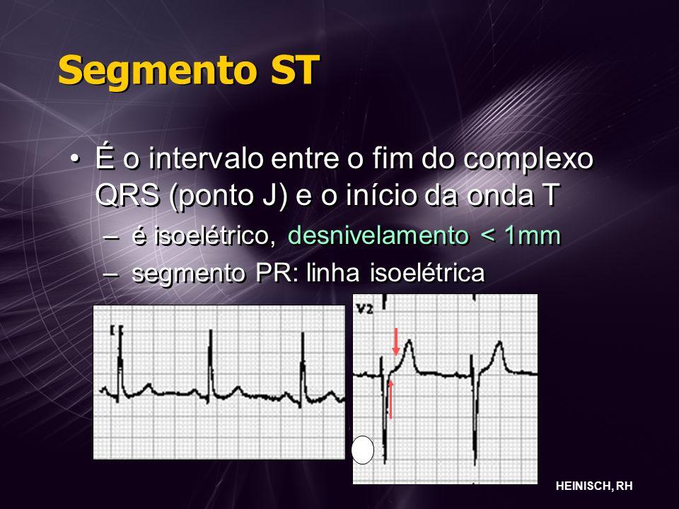 Segmento ST É o intervalo entre o fim do complexo QRS (ponto J) e o início da onda T. é isoelétrico, desnivelamento < 1mm.