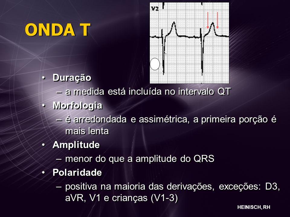 ONDA T Duração a medida está incluída no intervalo QT Morfologia