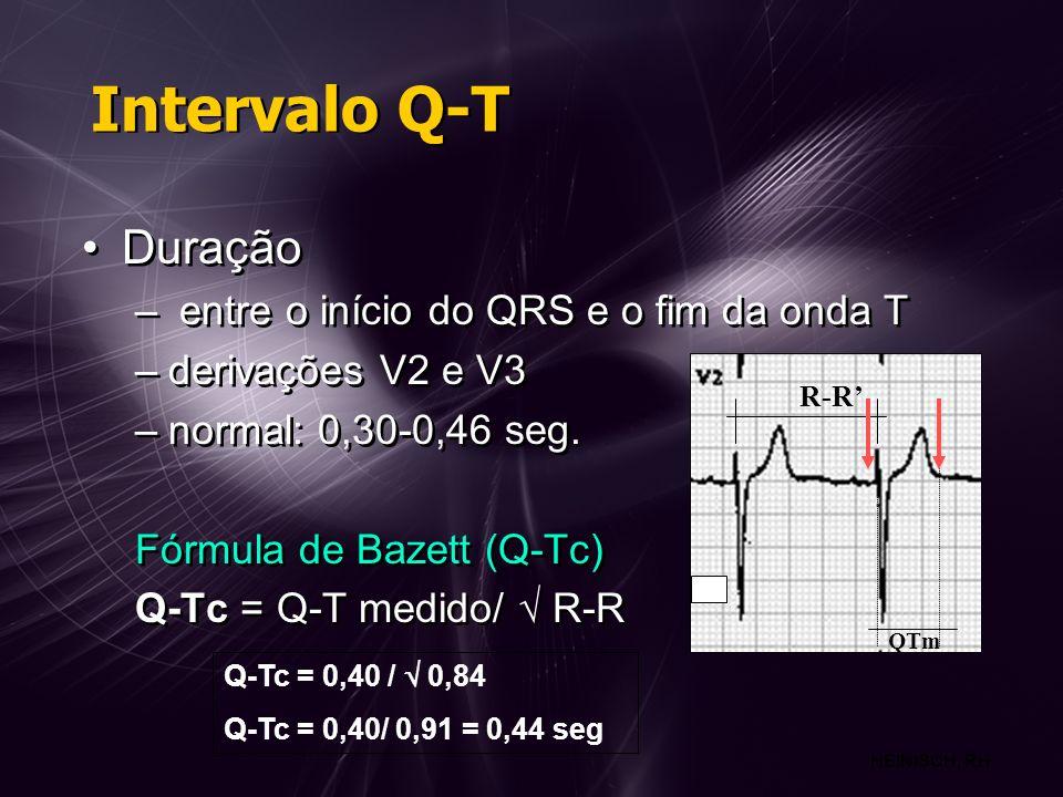 Intervalo Q-T Duração entre o início do QRS e o fim da onda T