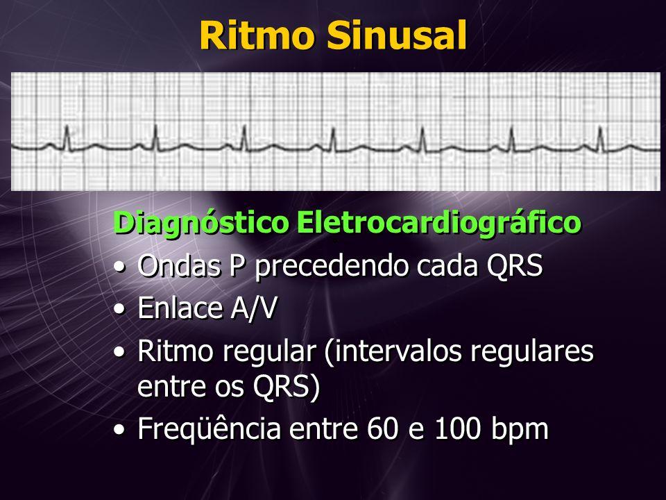 Ritmo Sinusal Diagnóstico Eletrocardiográfico