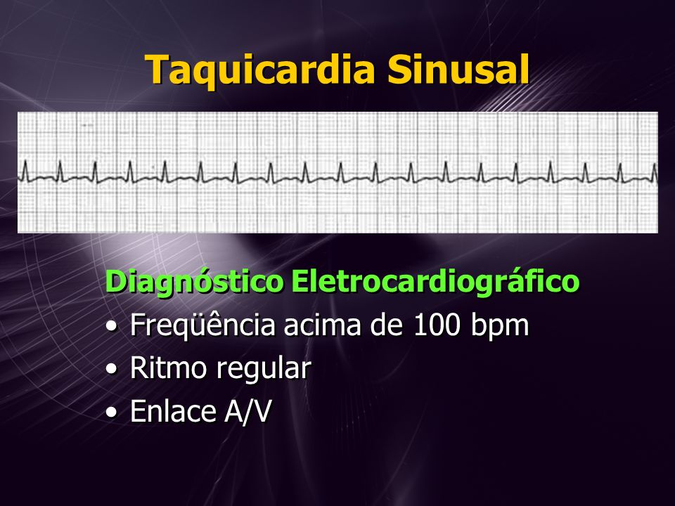 Taquicardia Sinusal Diagnóstico Eletrocardiográfico