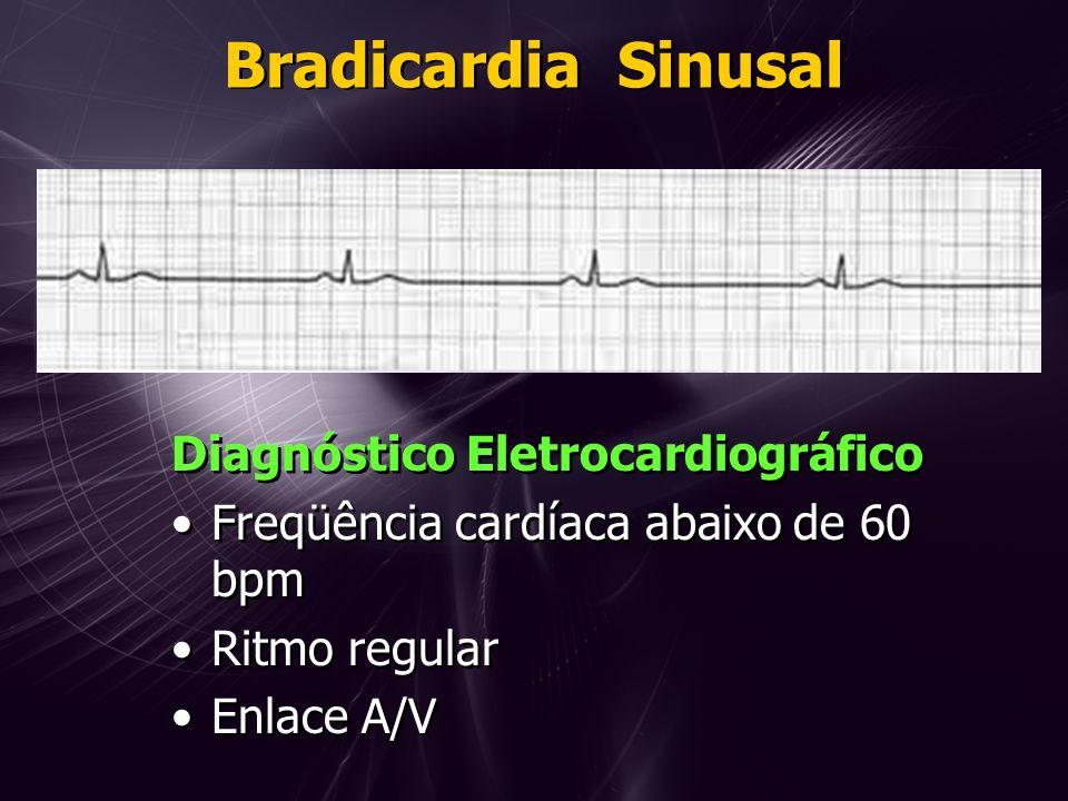 Bradicardia Sinusal Diagnóstico Eletrocardiográfico