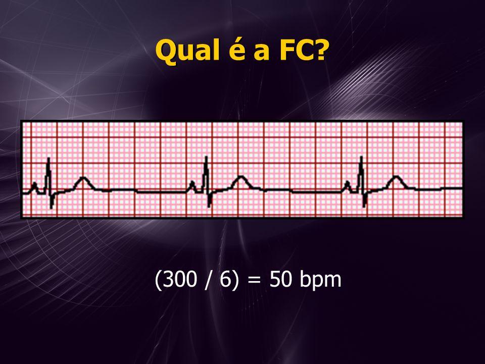 Qual é a FC (300 / 6) = 50 bpm