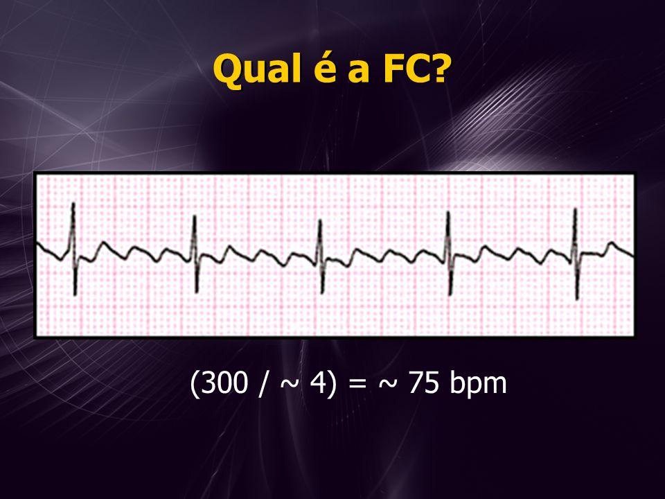 Qual é a FC (300 / ~ 4) = ~ 75 bpm